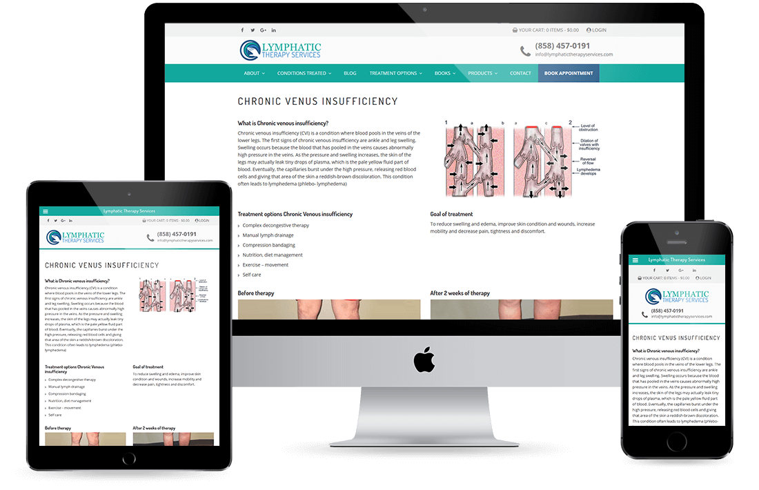 Lymphatic Therapy Services Service Page design by Equity Web Solutions
